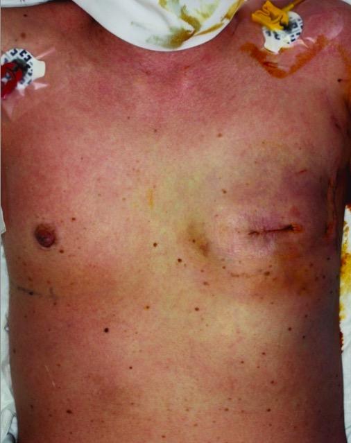 Staphylococcus aureus Toxic Shock Syndrome