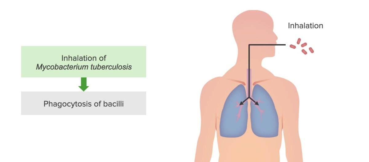 Step 1 of tuberculosis infection