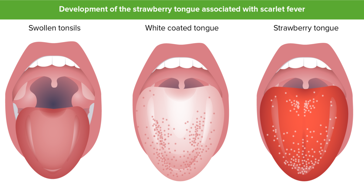 Strawberry tongue and scarlet fever