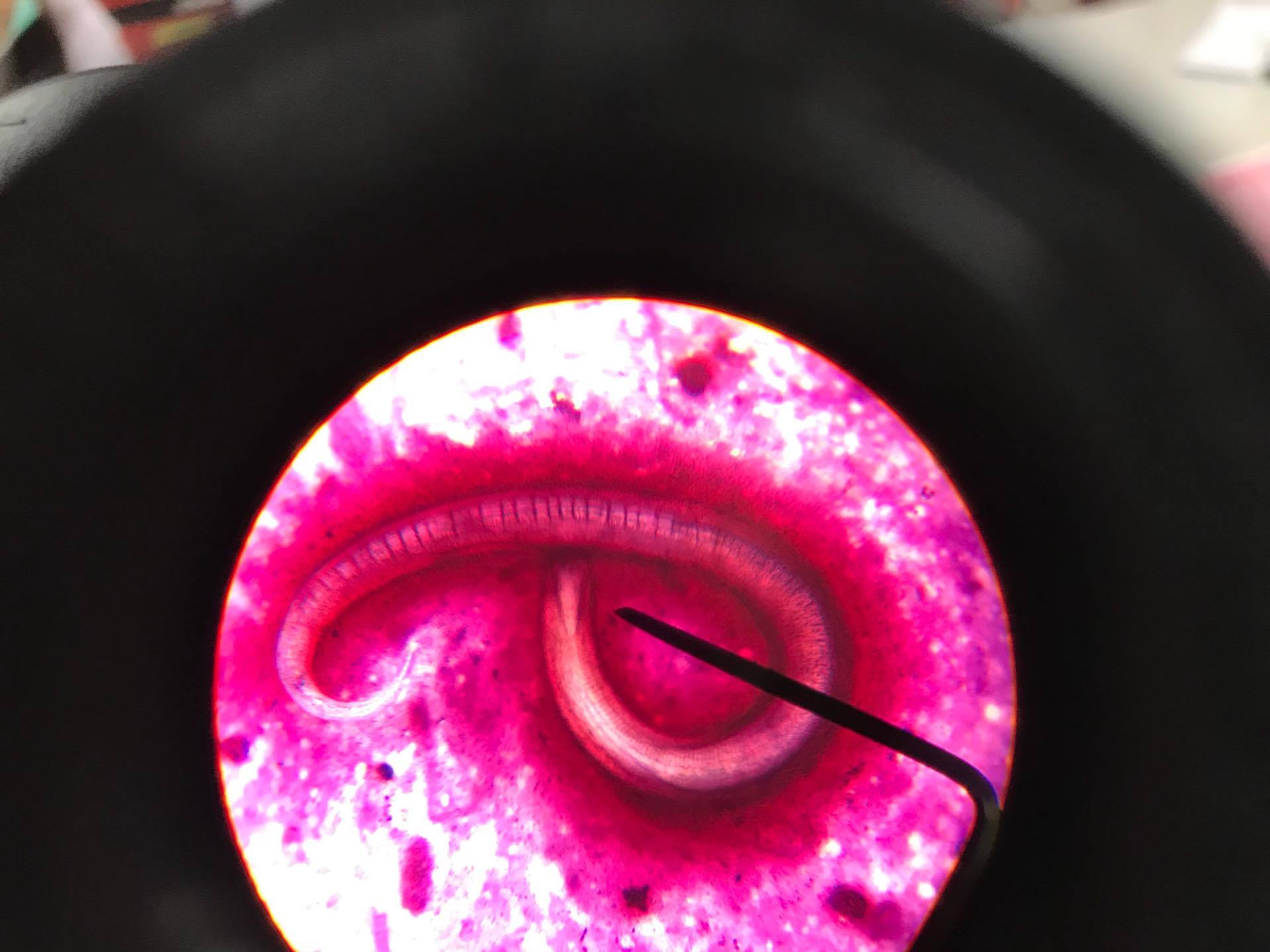 Strongyloides Stercoralis in sputum Toxocariasis