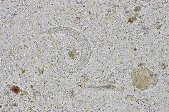 Strongyloides larvae