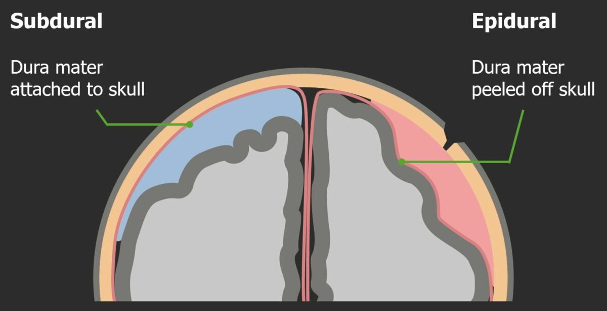Structural differences between epidural and subdural hematomas