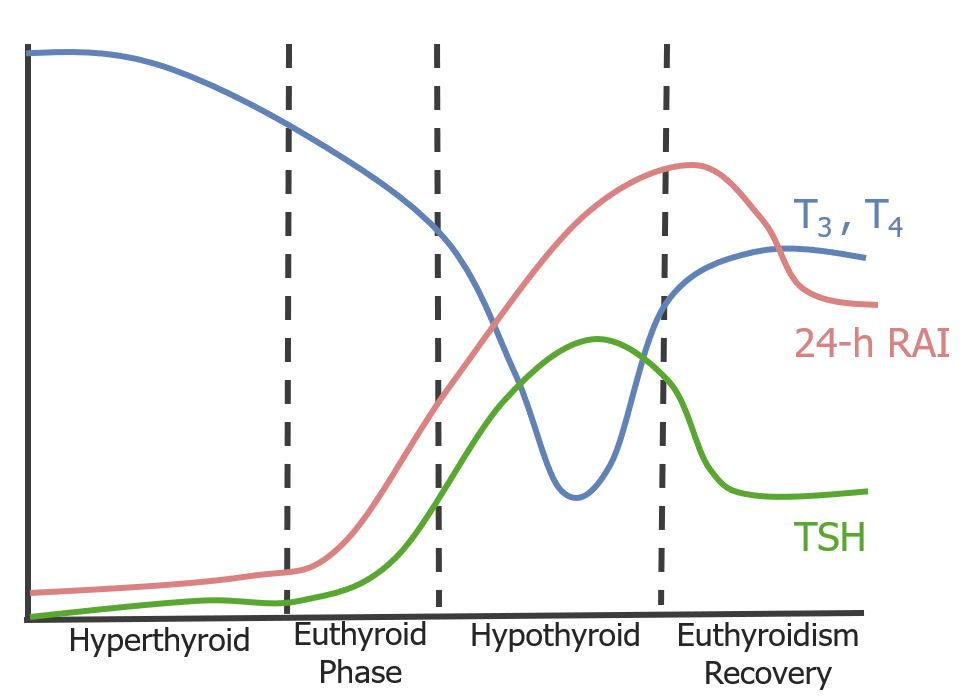 Subacute thyroiditis triphasic clinical course