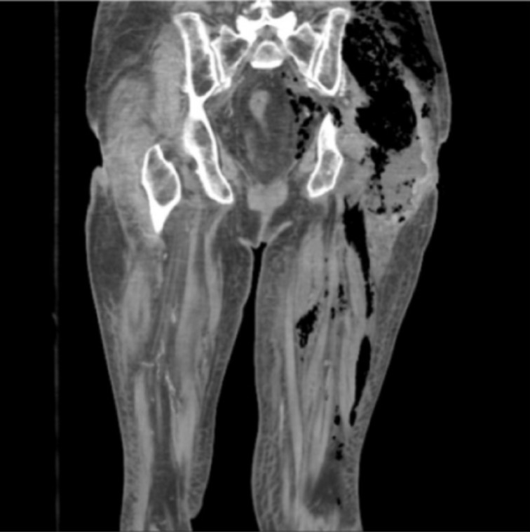 Subcutaneous gas in leg in necrotizing fasciitis