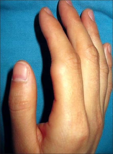 Subcutaneous lipoma