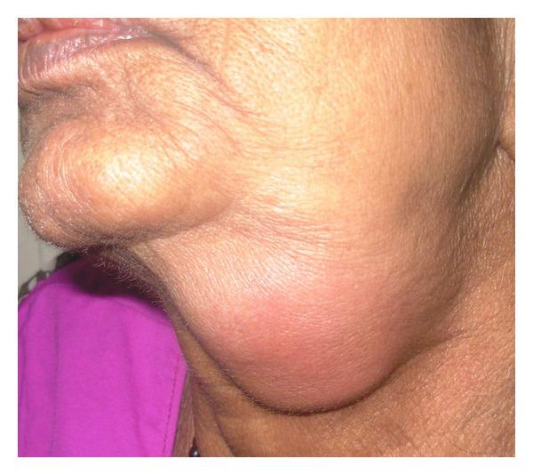 Submandibular swelling and erythema due to sialadenitis