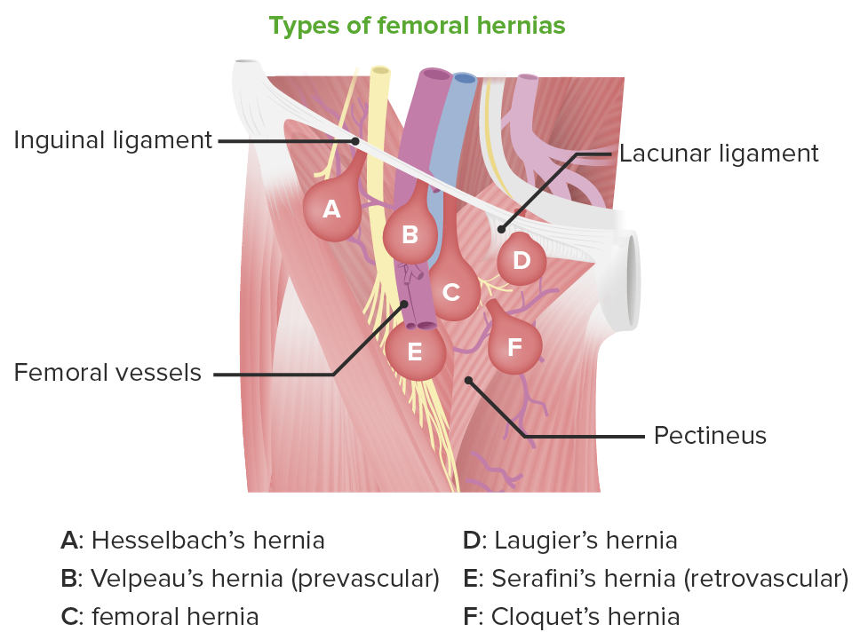 Subtypes of femoral hernias
