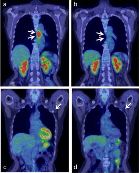 Successfully treated advanced esophageal cancer
