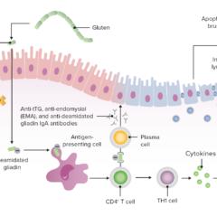 Summarizing the pathophysiology of celiac disease