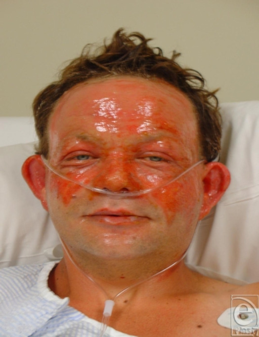 Superficial partial-thickness facial burns