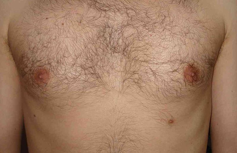 Supernumerary third nipple