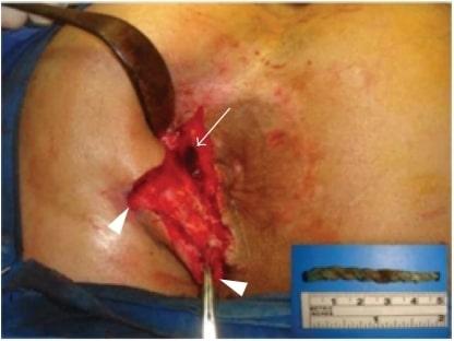 Suprasphincteric fistula