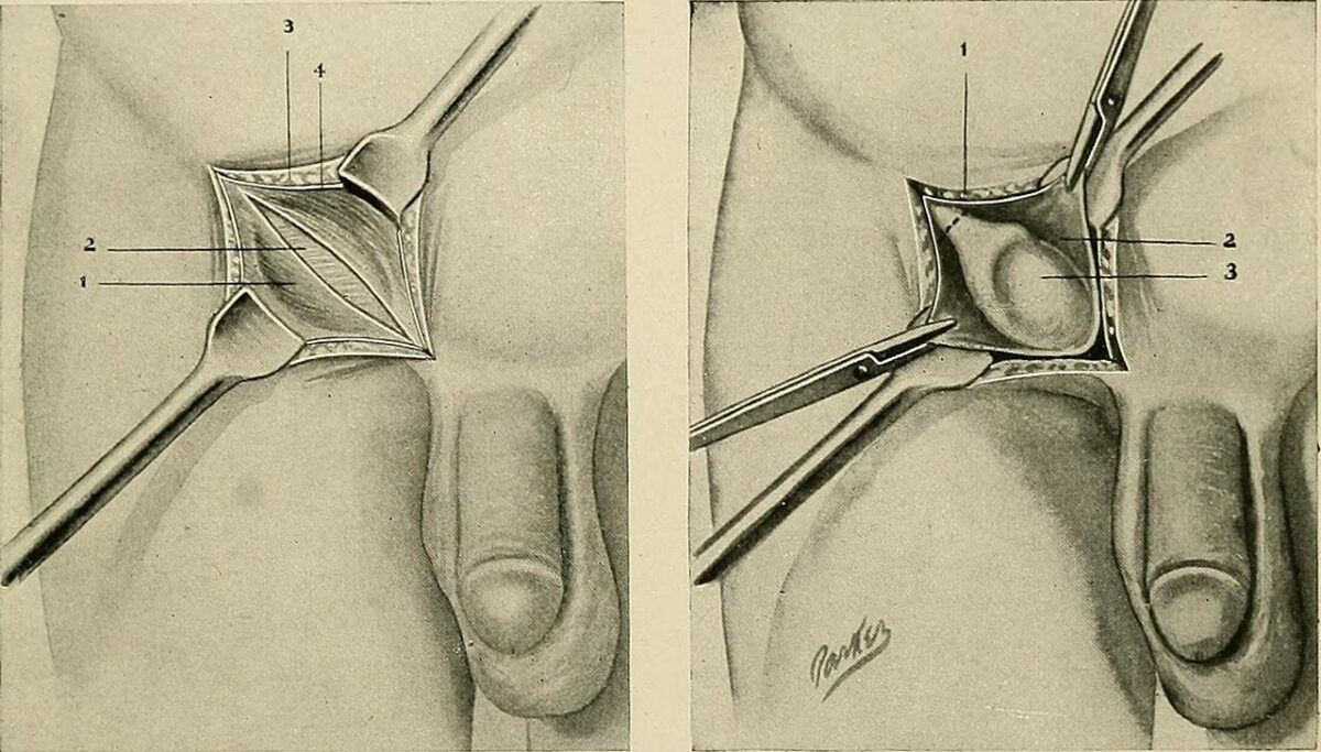 Surgery for undescended testis