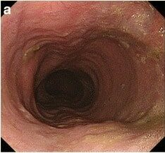 Surgical management for achalasia
