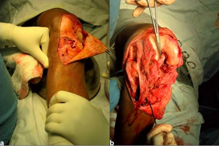 Surgical repair of a knee dislocation