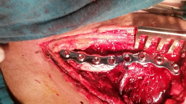 Surgical repair of clavicular fracture