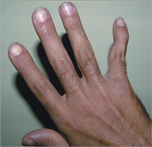 Swan-neck deformity in the fifth finger