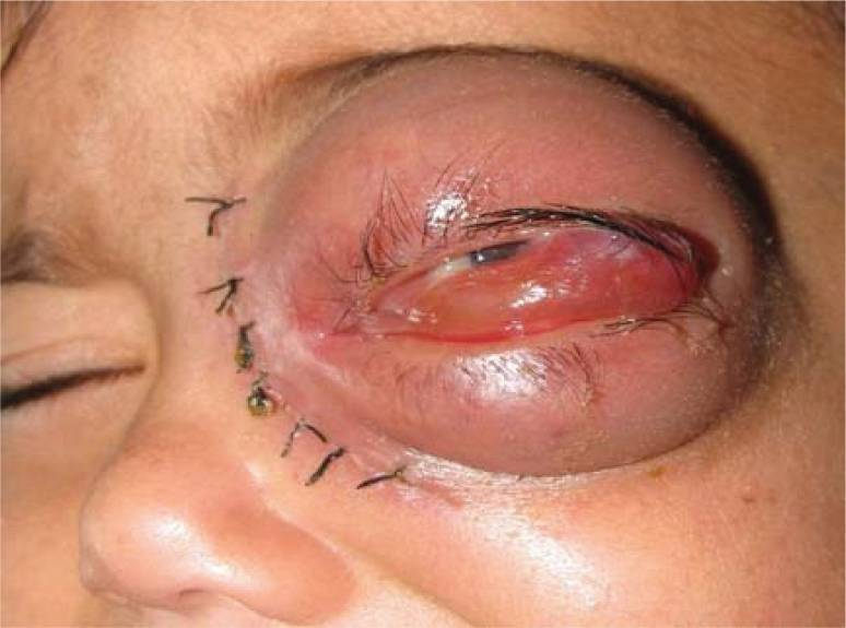 Swelling of upper and lower lid mucormycosis