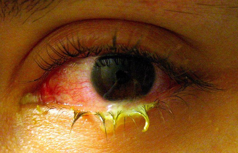 Swollen eye with conjunctivitis