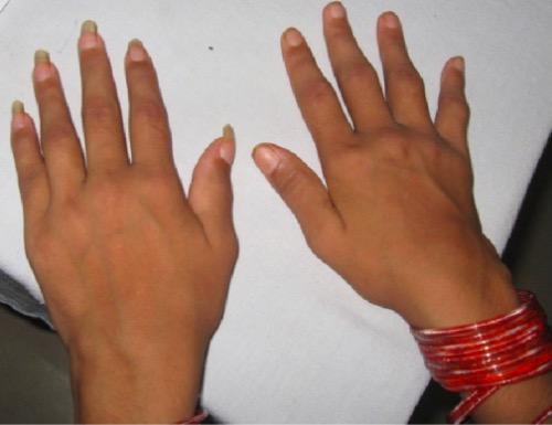 Symmetrical synovitis of wrists