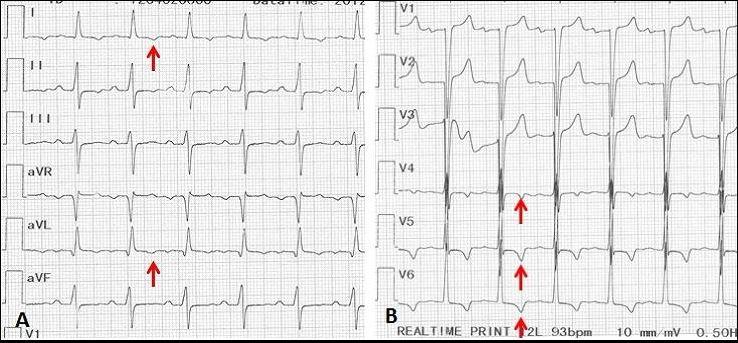 Syphilitic aortic insufficiency ECG