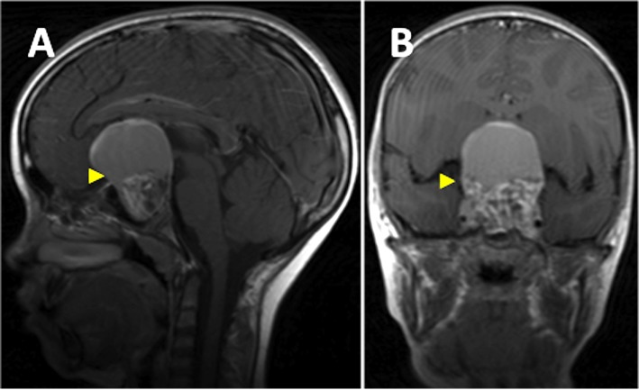T1-weighted MRI brain with contrast shows large partly cystic, partly solid craniopharyngioma