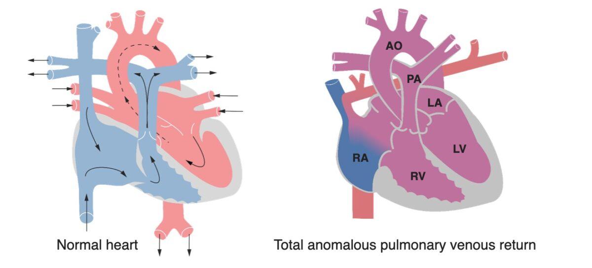 TAVR vs normal heart