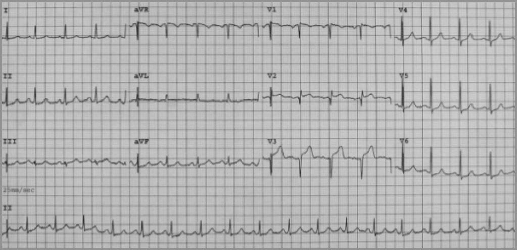 Takotsubo cardiomyopathy Twelve-lead electrocardiogram