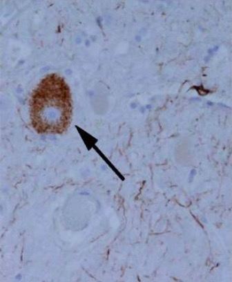 Tangle-like tau protein aggregate in a patient with progressive supranuclear palsy