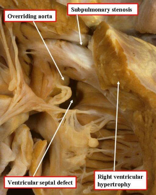 Tetralogy of Fallot autopsy