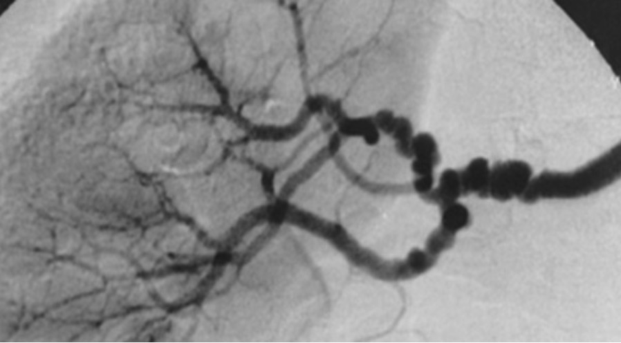 The string-of-beads feature in medial fibromuscular dysplasia