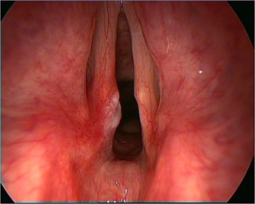 The larynx in cough