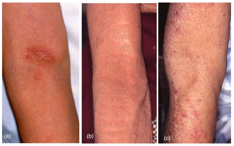 Thick, leathery skin (lichenification) due to eczema