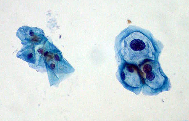 ThinPrep Pap smear HPV