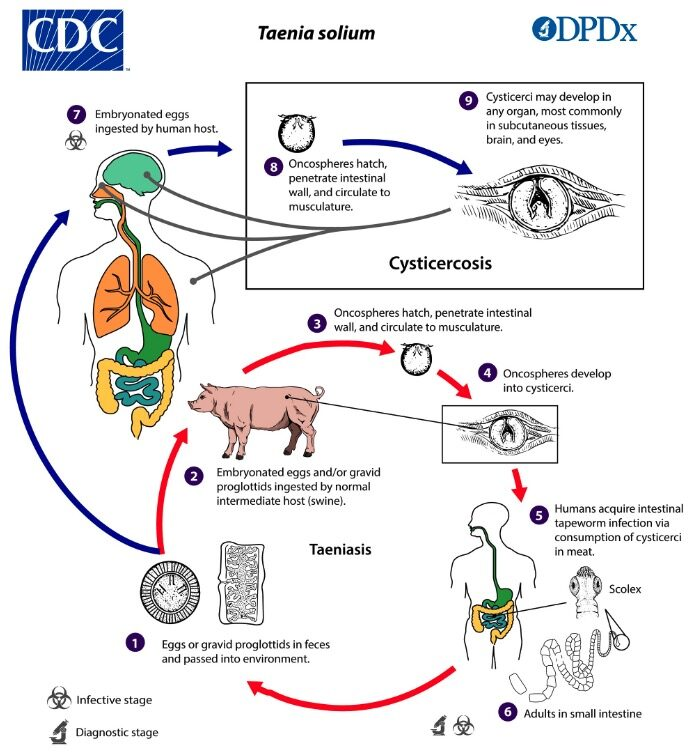 life cycle T. solium and the development of cysticercosis versus taeniasis