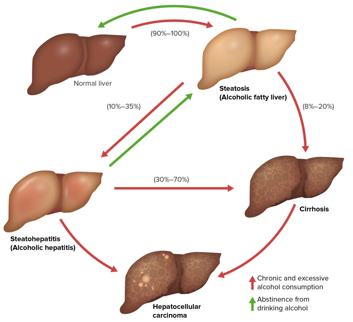 Three stages of alcoholic liver disease