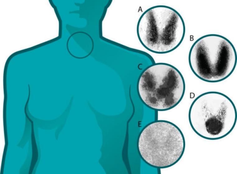 Thyroid uptake scan