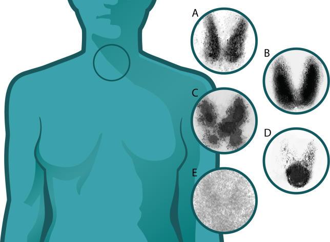 Thyroid uptake scans