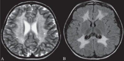 Tigroid pattern in MLD