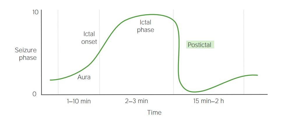 Timeline of seizure phases