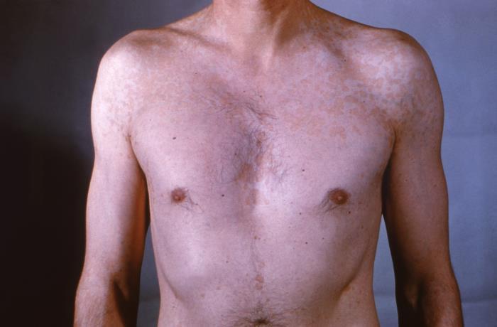 Tinea versicolor on chest