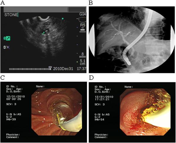 Tiny CBD stone pancreatitis