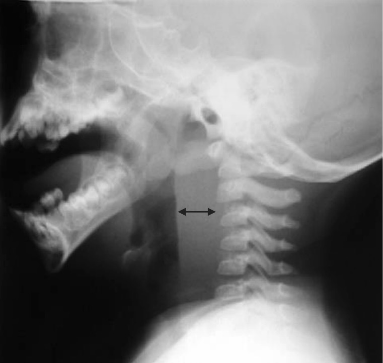 Tissue edema and abscess in retropharyngeal space
