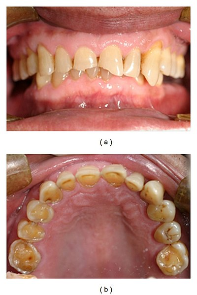 Tooth erosion due to GERD