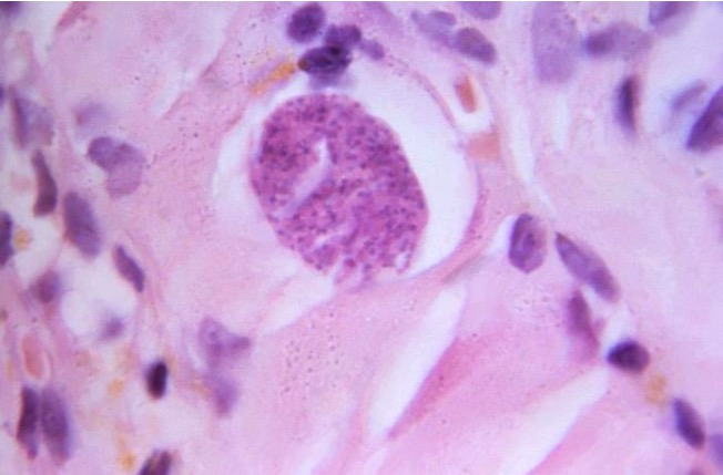 Toxoplasma gondii protozoan tissue cyst