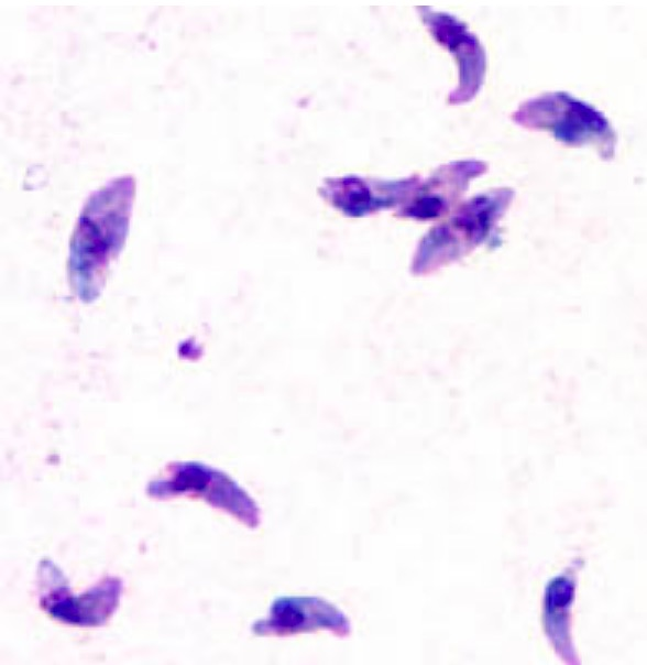 Toxoplasma gondii tachy