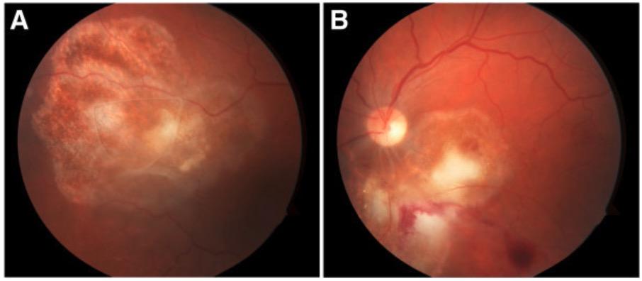 Toxoplasma retinochoroiditis