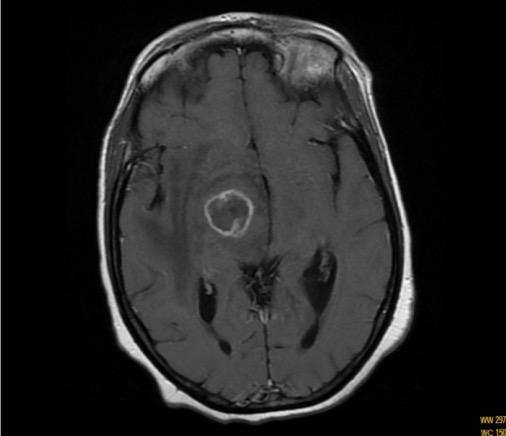 Toxoplasmosis MRI