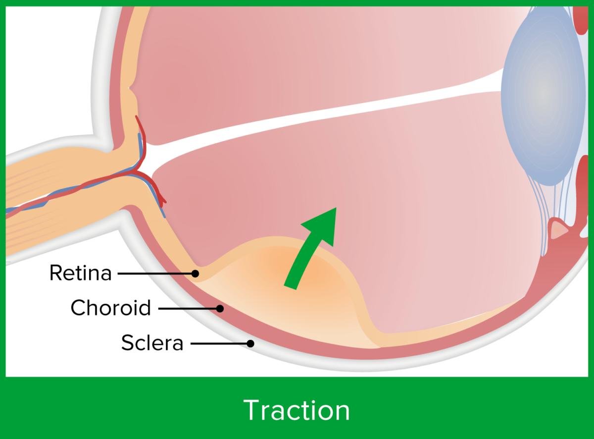 Traction retinal detachment