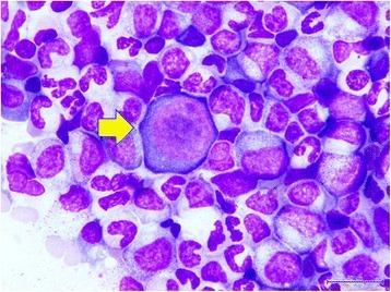 Transient aplastic crisis in Parvovirus B19 infection